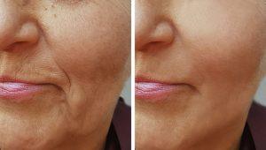 Juliet Facial Rejuvenation Squamish BC